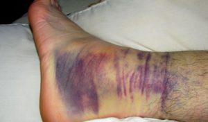 лечение двухлодыжечного перелома со смещением и без