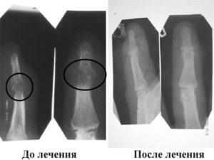 Симптомы и лечение костной мозоли после перелома