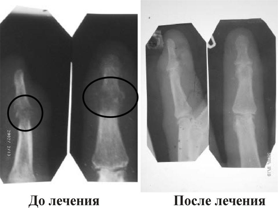 Костная мозоль после перелома: причины, симптомы, лечение