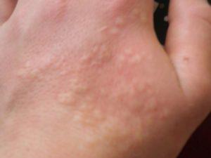 Симптомы и лечение ожога от крапивы