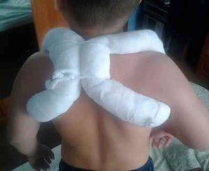 перелома ключицы у детей