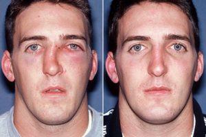 Симптомы и лечение перелома костей носа