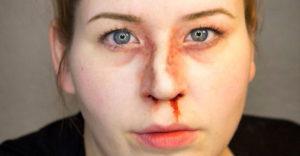 лечение перелома костей носа