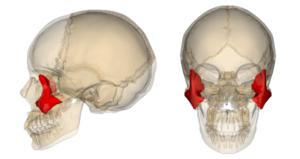 лечение перелома скуловой кости