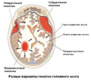 лечение внутричерепной гематомы