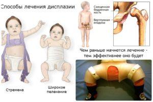 Симптомы и лечение врожденного вывиха бедра у детей