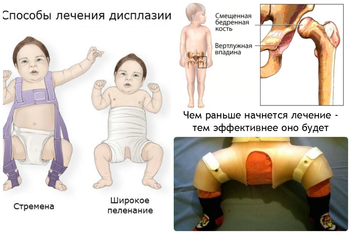 Врожденный подвывих тазобедренного сустава у детей лечение масло сандал для лечения суставов