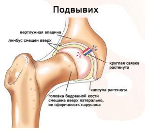 Симптомы и лечение вывиха бедра