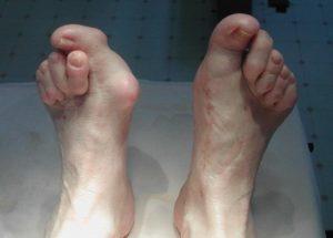 Симптомы и лечение вывиха пальца на ноге