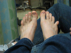 лечение вывиха пальца на ноге
