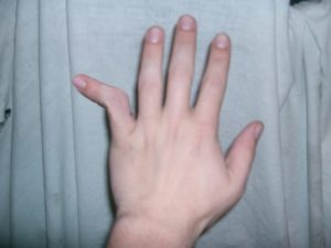 лечение вывиха пальца на руке