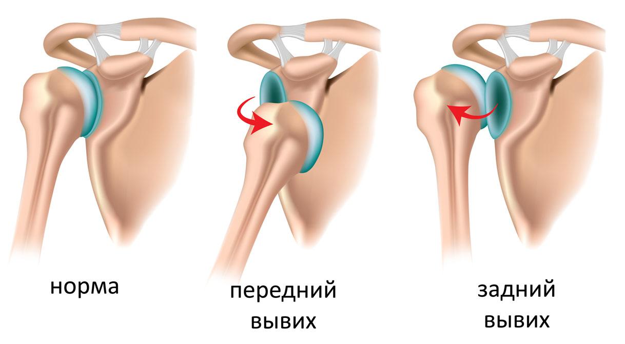 Врожденный вывих плечевого сустава где делают операции по замене тазобедренного сустава