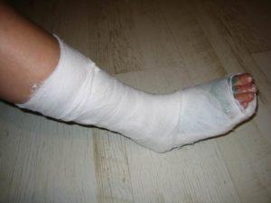 Сколько времени нужно носить гипс при переломе пятки