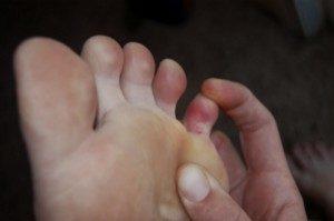 лечить ушиб мизинца на ноге