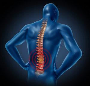 Как проводится лечение компрессионного перелома поясничного отдела позвоночника