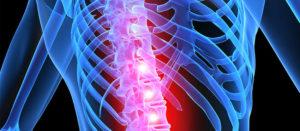 Признаки, диагностирование и лечение компрессионного перелома поясничного отдела позвоночника