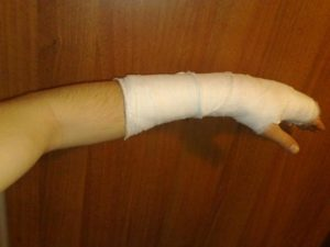 срок срастания перелома лучевой кости руки со смещением