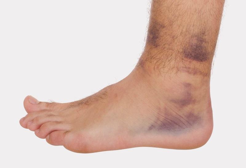 Вывих голеностопного сустава лямблии у взрослых суставы