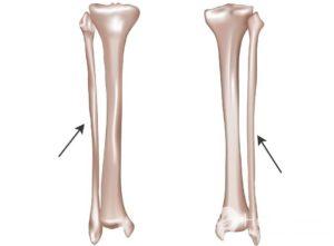 Как проявляется перелом малоберцовой кости, диагностика травмы
