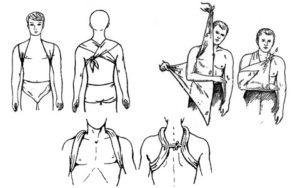 повязка при переломе ключицы